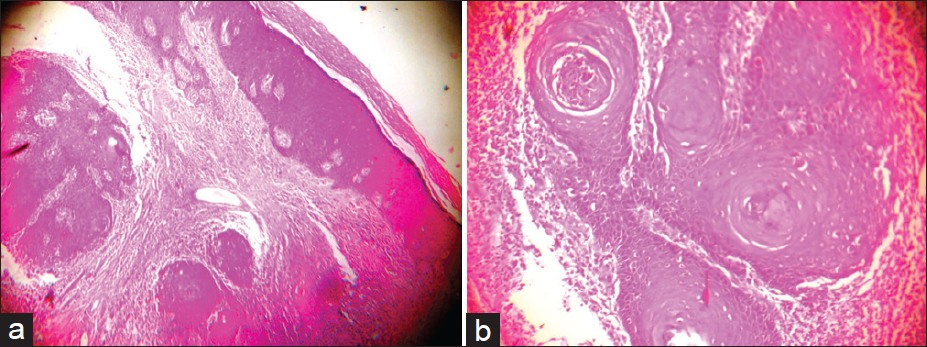 Figure 2: (a) Hyperplastic epidermis with invasion of the dermis by irregular mass of tumor cells and horny pearl (H and E, ×40), (b) Well-differentiated SCC showing differentiated keratinocytes surrounding the horny pearl (H and E, ×100)