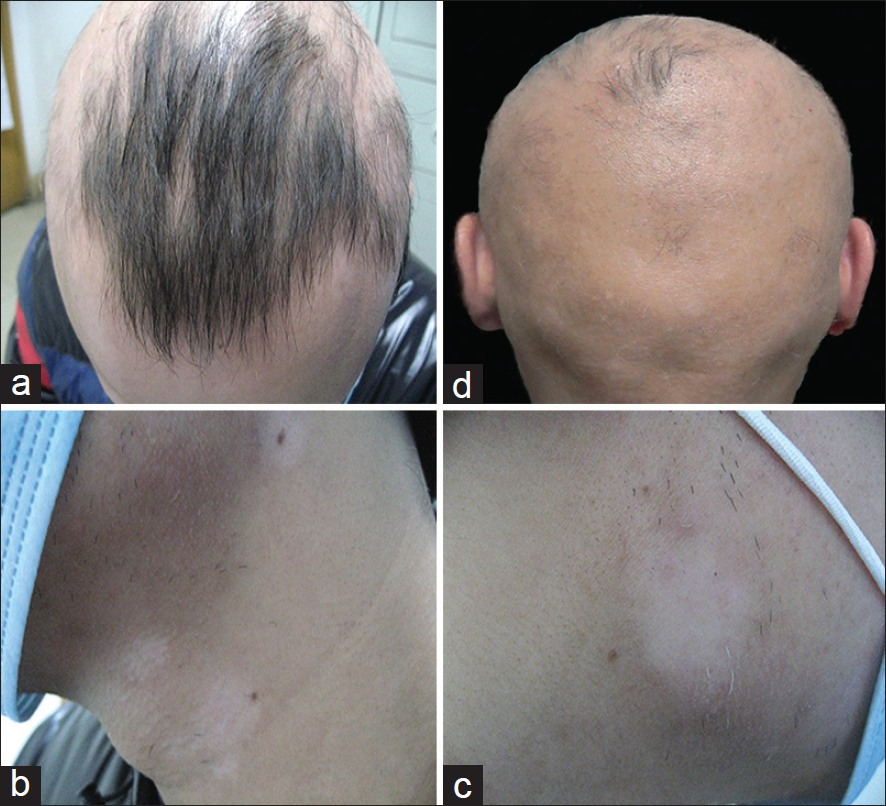 Alopecia Areata And Vitiligo As Primary Presentations In A Young Male With Human Immunodeficiency Virus Xuan L Baohua Y Lan B Indian J Dermatol