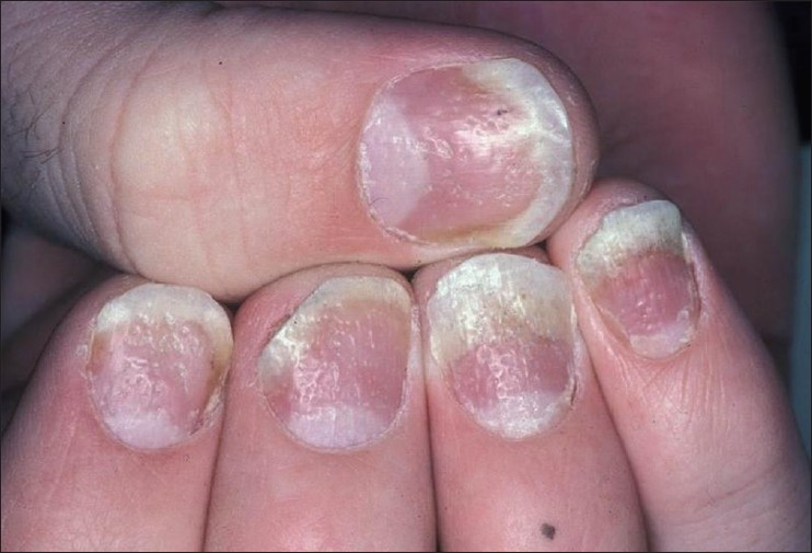 Nail Psoriasis The Journey So Far Dogra A Arora AK