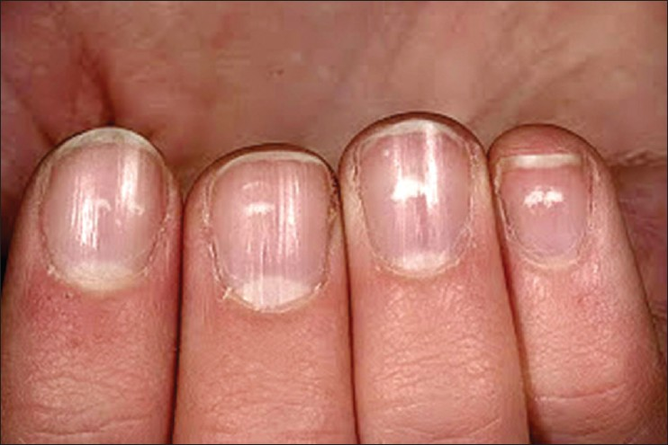 Nail psoriasis: The journey so far Dogra A, Arora AK - Indian J Dermatol