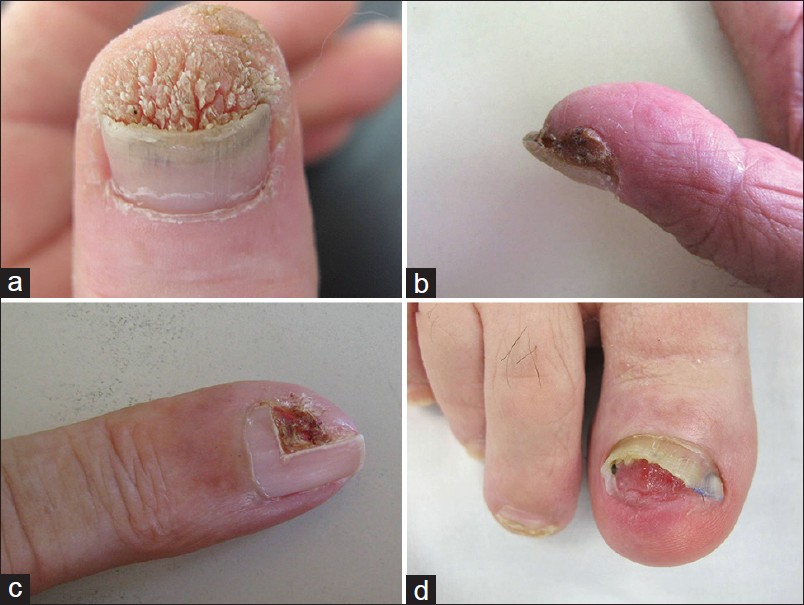 Home Remedies For Warts On Your Finger