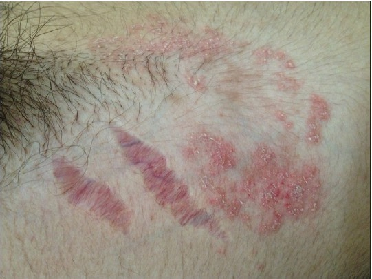 Treatment for steroid damaged skin problems with long term use of steroids