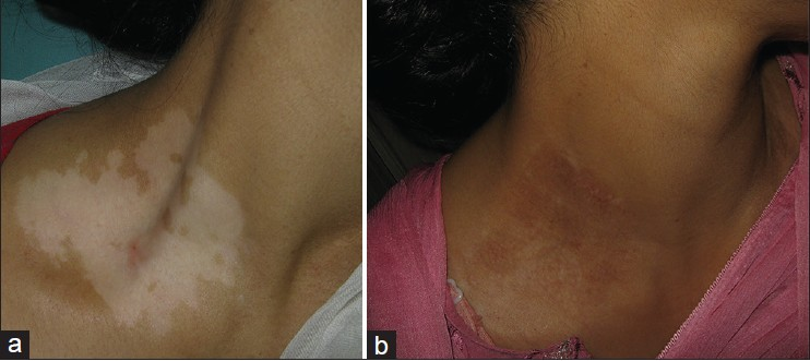 Efficacy Of Targeted Narrowband Ultraviolet B Therapy In Vitiligo