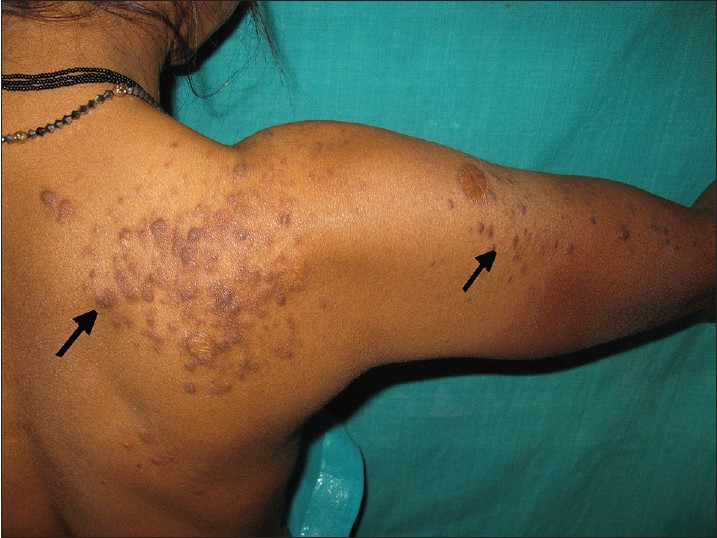 Figure 1: Multiple skin-colored, smooth-surfaced, papulonodular lesions arranged in a segmental pattern over right upper back extending up to right shoulder and arm (arrows)