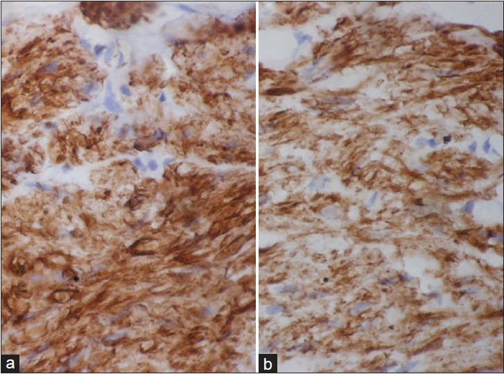 Figure 3: Immunohistochemical staining, positive for smooth muscle actin and desmin