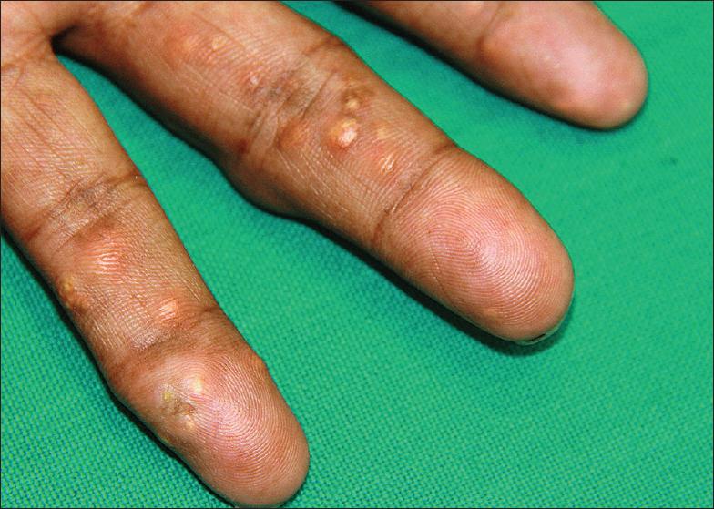 vegetables to be avoided for high uric acid penatalaksanaan gouty arthritis tanda gejala gout arthritis