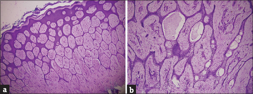 Figure 2: (a) Branching anastomosing strands of epithelial cells extending from multiple points in the epidermis (H and E, original magnification ×40. (b) Small ductules lined by cuboidal cells within the epithelial strands embedded in a fibrovascular stroma (H and E, original magnification ×400)