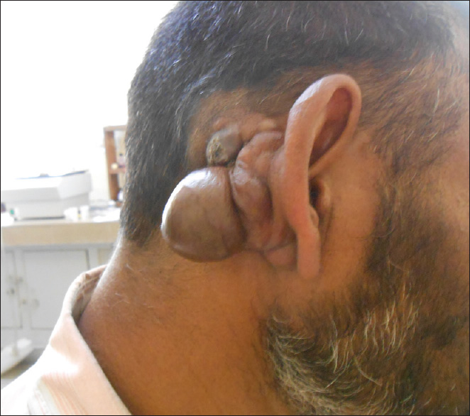 Variant of dermatofibrosarcoma protuberans: Bednar tumor