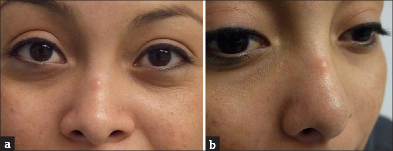 Cellulitis bridge of nose indian journal of dermatology table of