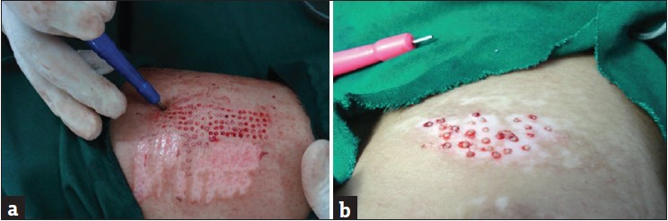 novel uses of skin biopsy punches in dermatosurgery hurkudli ds ...