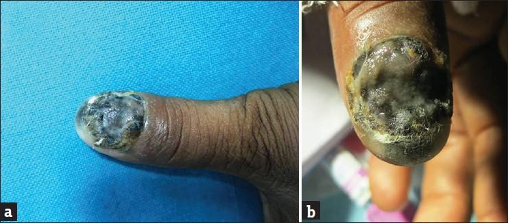 A rare case of subungual melanoma