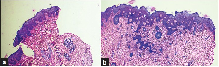 Figure 2: (a) Histology with H and E, ×40 (case 6) showing regular psoriasiform acanthosis and papillary capillary dilatation, (b) Histology with H and E, ×40 (case 6) showing spongiosis, irregular acanthosis and lymphocytic infiltrate in the dermis