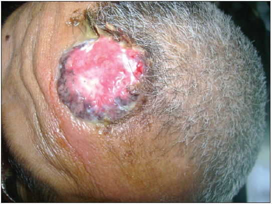 Figure 1: Ulcer on the forehead