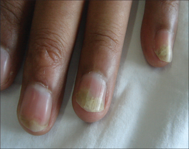 Dermoscopy to detect signs of subclinical nail involvement in ...