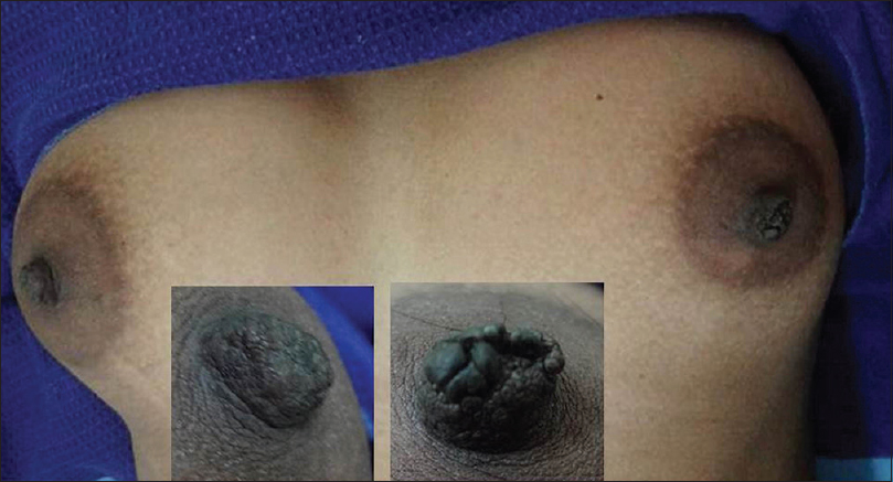 Dark nipple pics