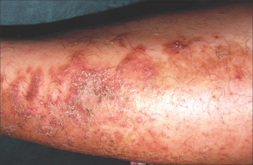 Et al, Methotrexate in psoriasis: Revised guidelines 1