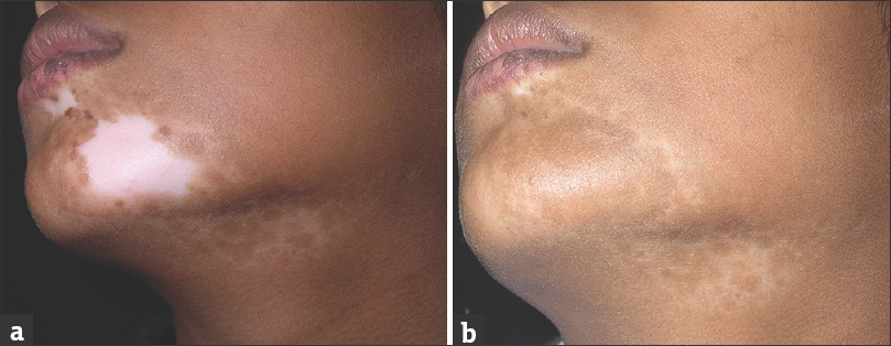 Skin grafting for vitiligo in bangalore dating