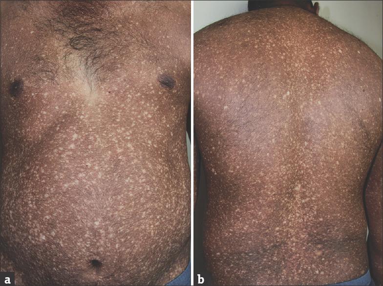 Maladie de Darier - Société Française de Dermatologie