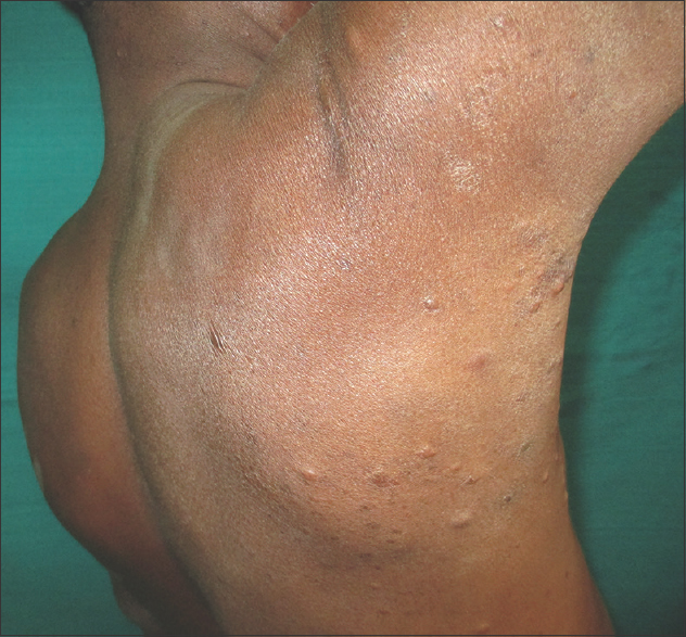 Figure 1: (Original) Multiple skin-colored to yellowish papules on the back of chest and shoulder region on the right side
