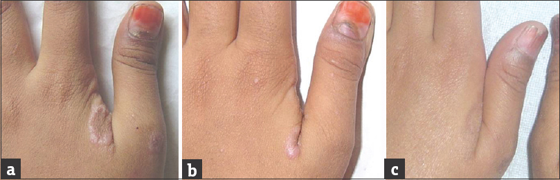 Onychomadesis with lichen planus: An under-recognized manifestation ...
