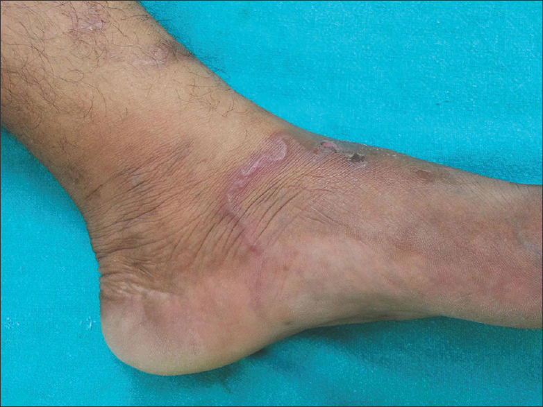 Figure 5: An erythematous curvilinear lesion on dorsum of left foot with scattered eczematous papules and excoriations