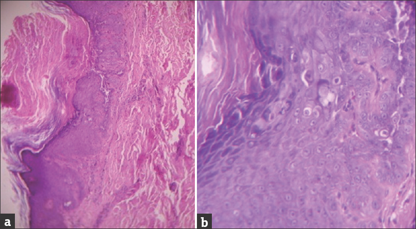 Figure 4: Histopathology showing (a) prominent hyperkeratosis and suprabasal acantholytic cleft with villi (H and E, ¡¿100); (b) dyskeratotic cells (H and E, ¡¿400)