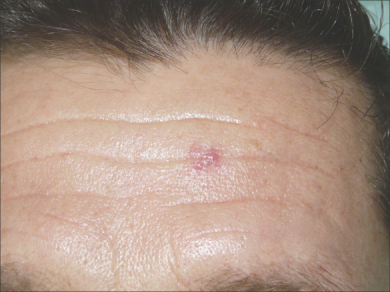 Vascular tumor on the forehead of an HIV patient Ibarguren