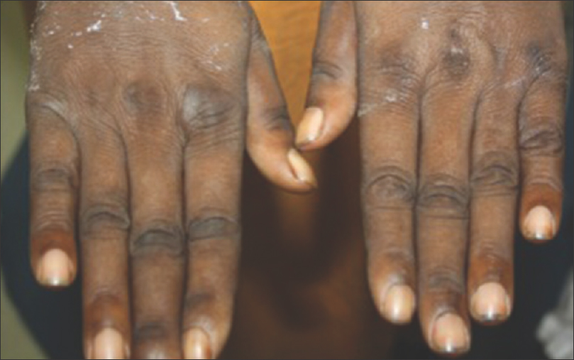 Figure 1: Rugose and velvety lesions over knuckles