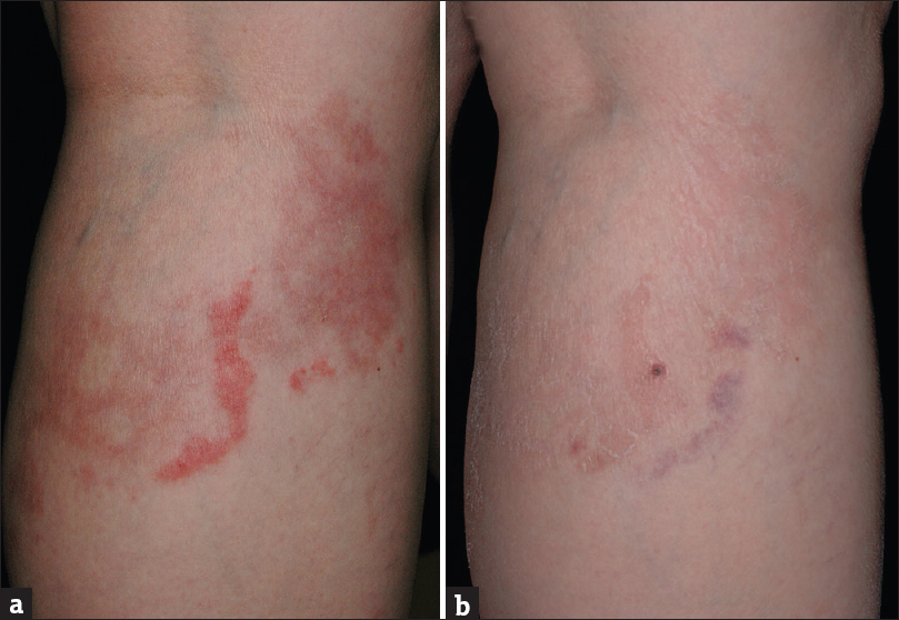 Erythromycin as a safe and effective treatment option for erythema