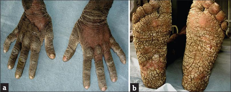 Epidermolytic Hyperkeratosis Face A sporadic case of ich...