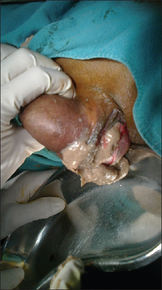 Prominent sebaceous glands vagina