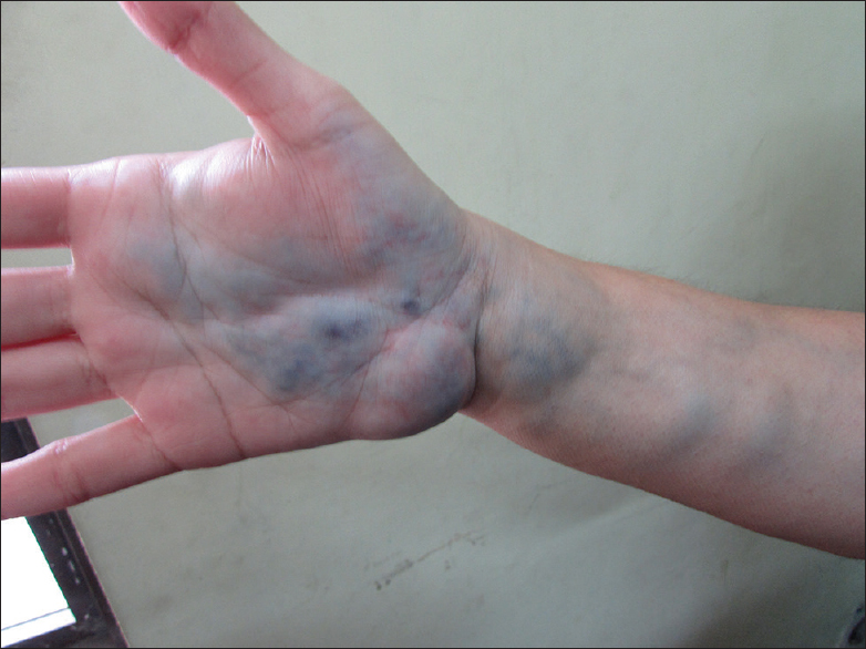 Figure 2: Multiple skin colored swellings affecting the right hand