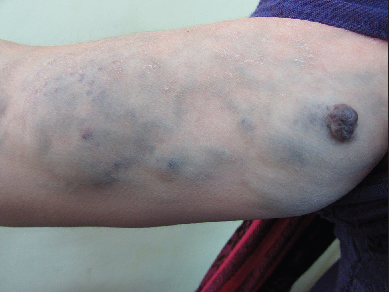 Unilateral Linear Blue Rubber Bleb Nevus Syndrome Bean S