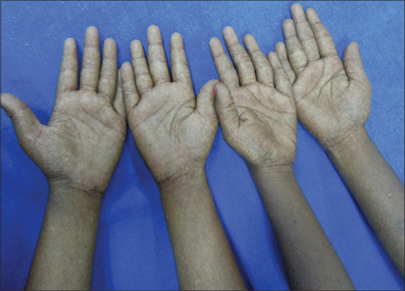 Figure 5: Depicts case three and case four with palms showing similar mottled pigmentation
