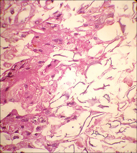 Congenital giant keratinous cyst mimicking lipoma: Case