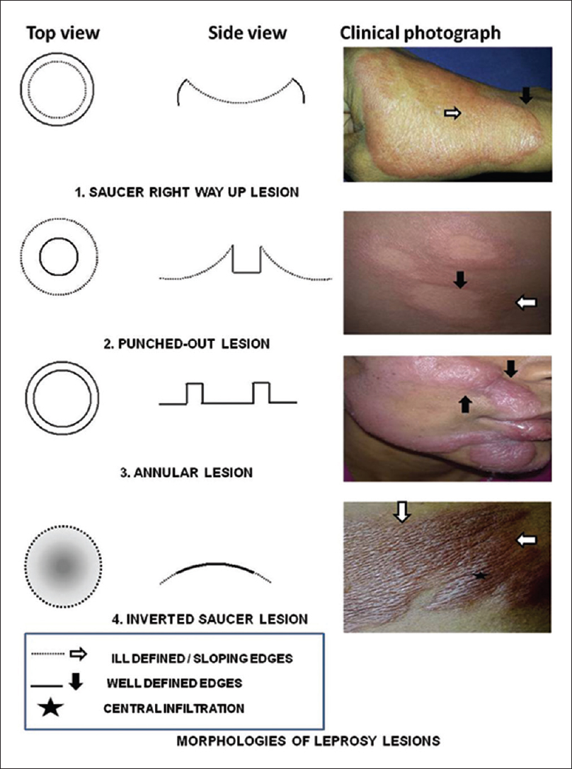 Saucer lesions in leprosy: Anatomy of the controversy Bhushan P ...