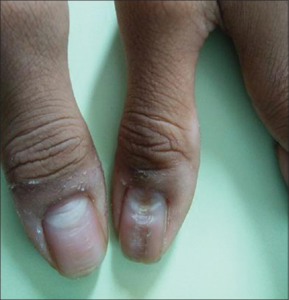 Figure 1: Single median longitudinal groove in a fir tree pattern over both  thumb nails - Median Nail Dystrophy Involving The Thumb Nail Kota R, Pilani A