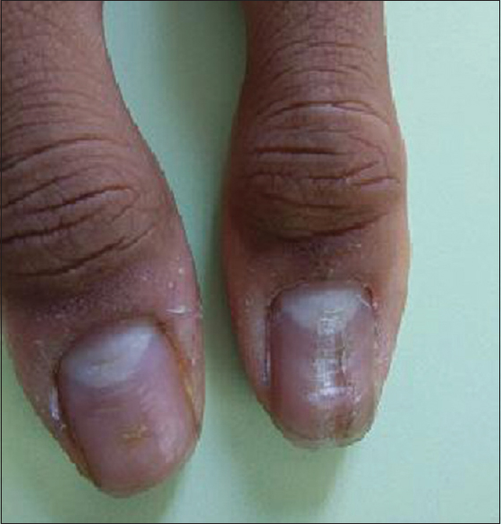 Median nail dystrophy involving the thumb nail Kota R, Pilani A ...