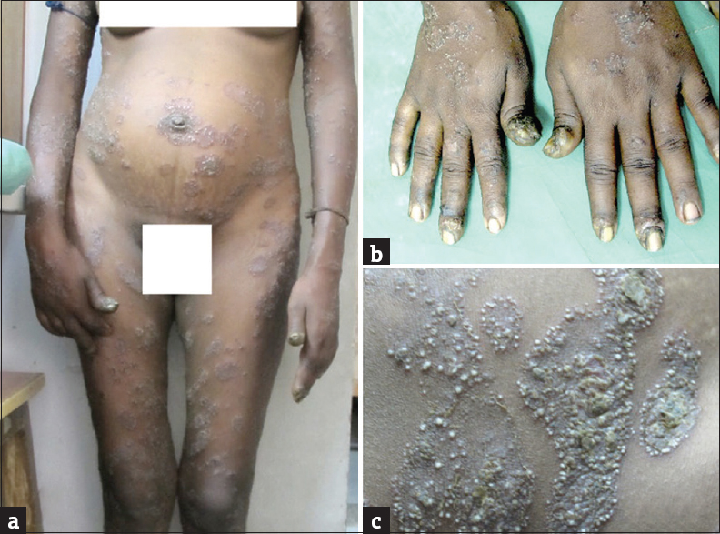 Pustular Psoriasis of Pregnancy Successfully Treated With Cyclosporine 1