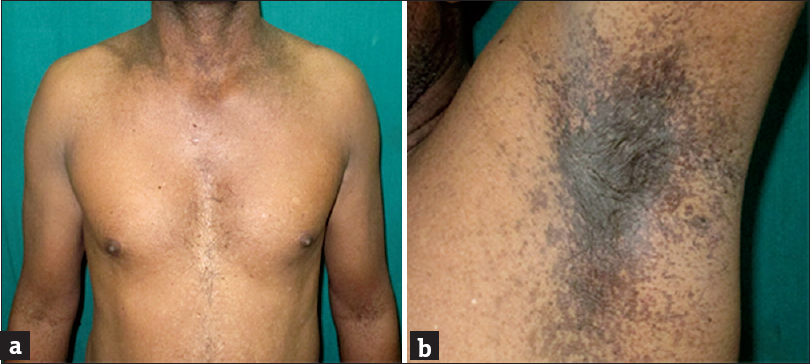 Dermatoscopic features of hyper and hypopigmented lesions ...