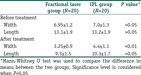 Fractional Co2laser Versus Intense Pulsed Light In