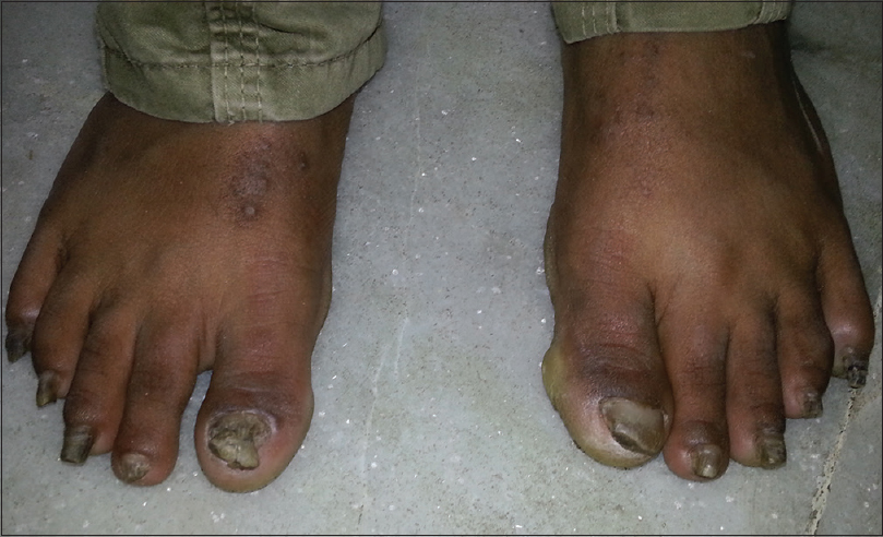 Figure 3: Dystrophic toe nails with wedge-shaped deformity