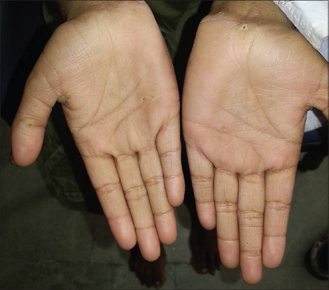 Figure 7: Hyperkeratotic papules over the palms