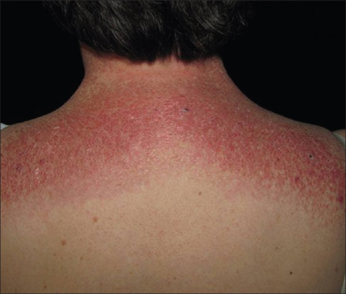 Figure 7: The Shawl sign of dermatomyositis