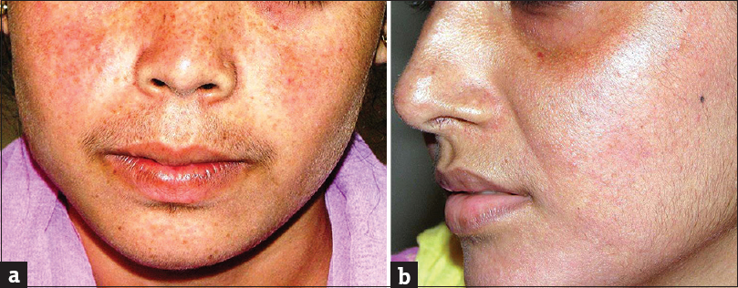 Topical steroid damaged/dependent face (TSDF): An entity of