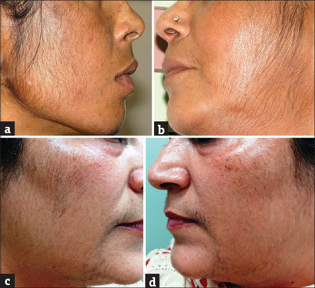 treatment for steroid damaged skin