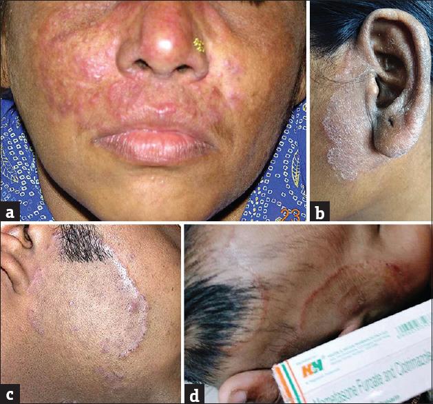Steroid damaged skin face pregnyl organon argentina