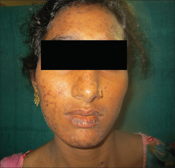 Figure 1: Multiple, variable size maculopapular lesions on face with hemorrhagic crusting on lips