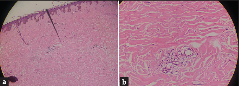 Figure 4: (a) Thinned epidermis, thick hyalinized collagen in dermis (H & E ×100). (b) Thick hyalinized collagen in dermis with sparse lymphocytic infiltrate (H & E ×400)