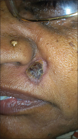 Figure 1: A slow-growing nodule near the right corner of the mouth with 1.8 cm in diameter, brownish-black with pearl white translucent rim surrounding it. There was the evidence of foci of erythema along the margin of the tumor